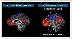 images brainy1